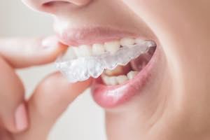 マウスピース矯正(ケンライン7)モニター。20万円以下ではじめる透明トレー矯正。治療期間最短3.5か月。まずは無料カウンセリング。小さな歯並びのズレ、小さなすきっ歯、矯正の後戻りに。
