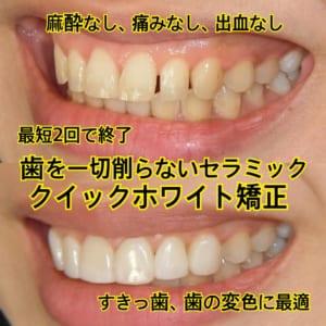 歯を削らないセラミック治療1本32,400円