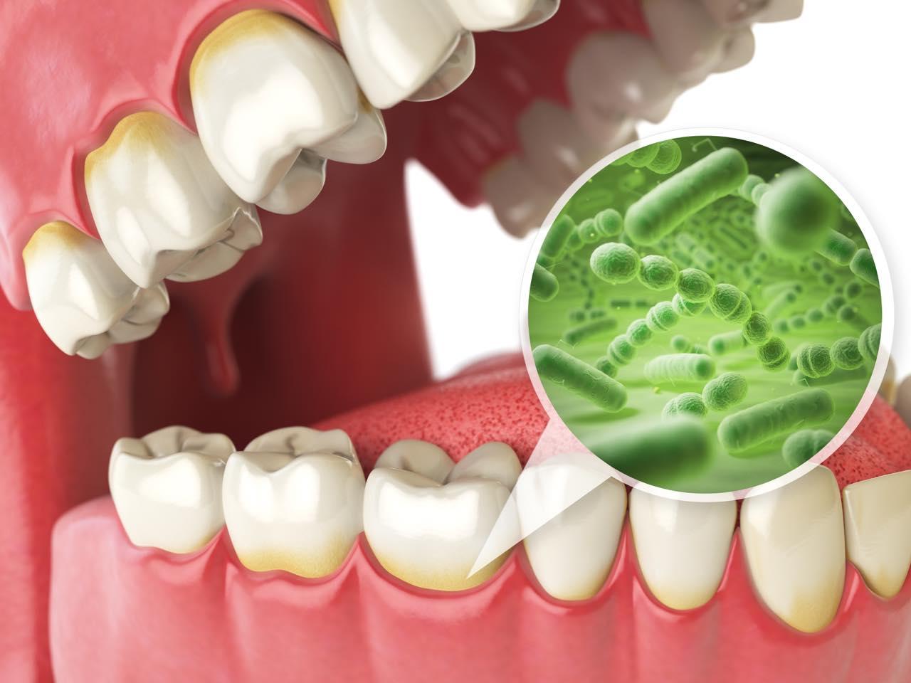 歯周病の原因と治療方法