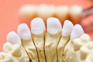 差し歯の種類と寿命