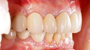 セラミックの差し歯は基本的に歯茎が黒ずむことはない