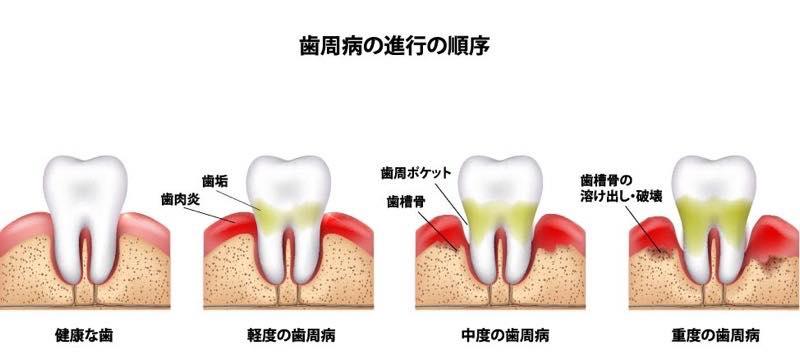 歯周病の進行の順序