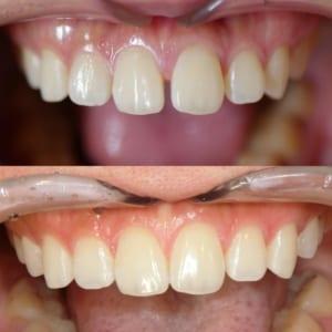 軽度であればすきっ歯、出っ歯、受け口、などにも対応できます。透明トレーのマウスピース矯正、目安期間7か月。40万円(税込)。本体代のみ