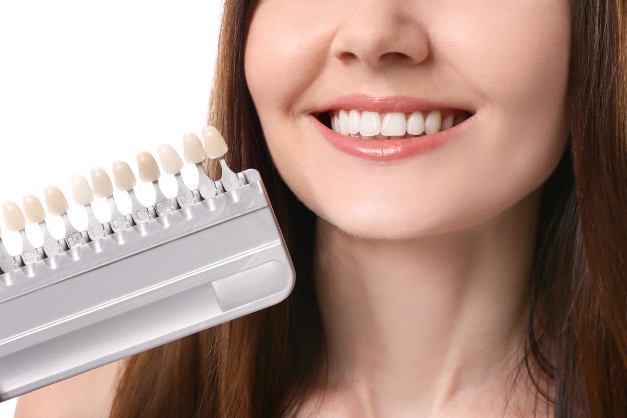 歯の色のレベルをホワイトニング後に調べる方法