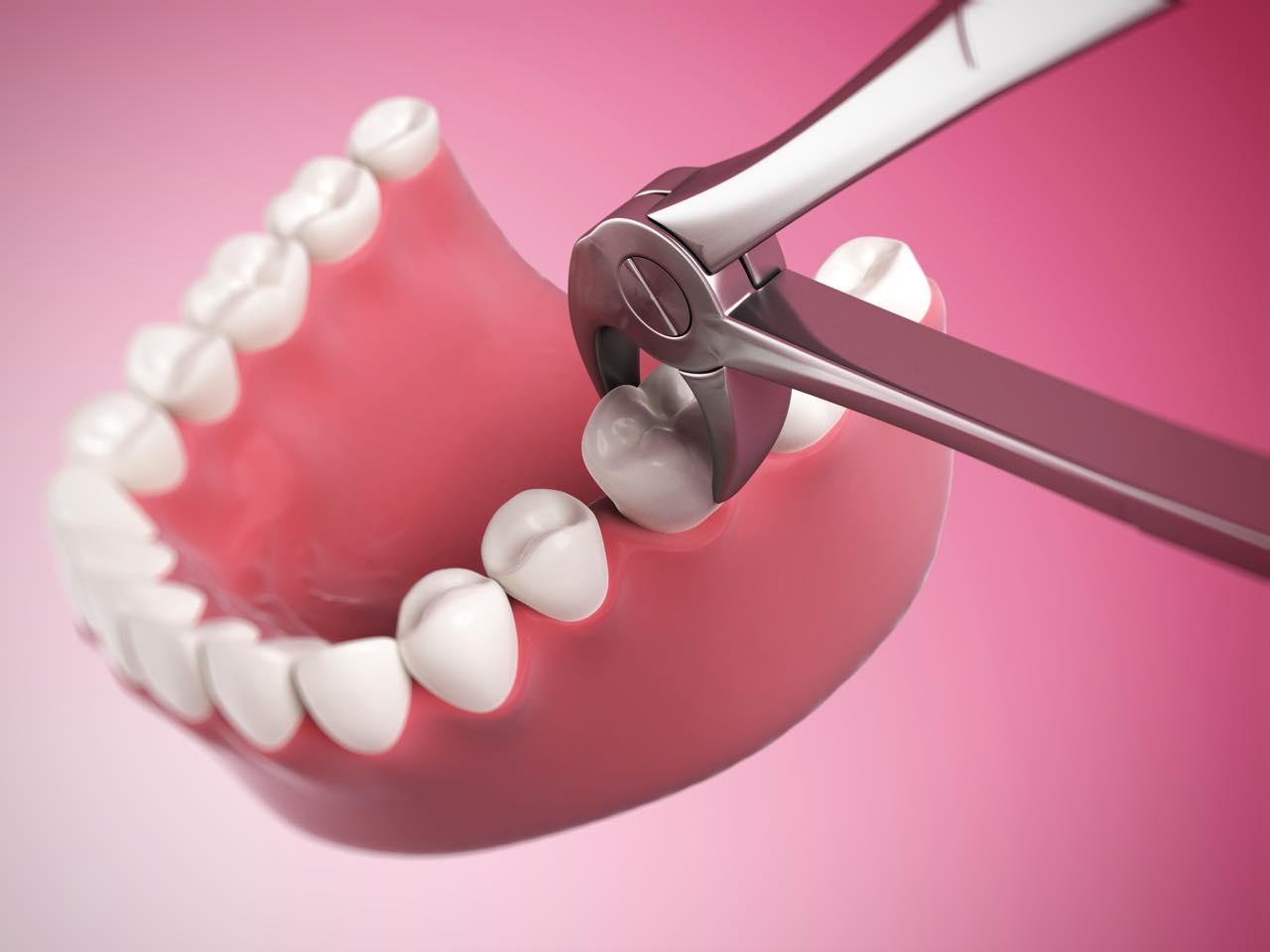 セラミック治療で抜歯することはあるの?