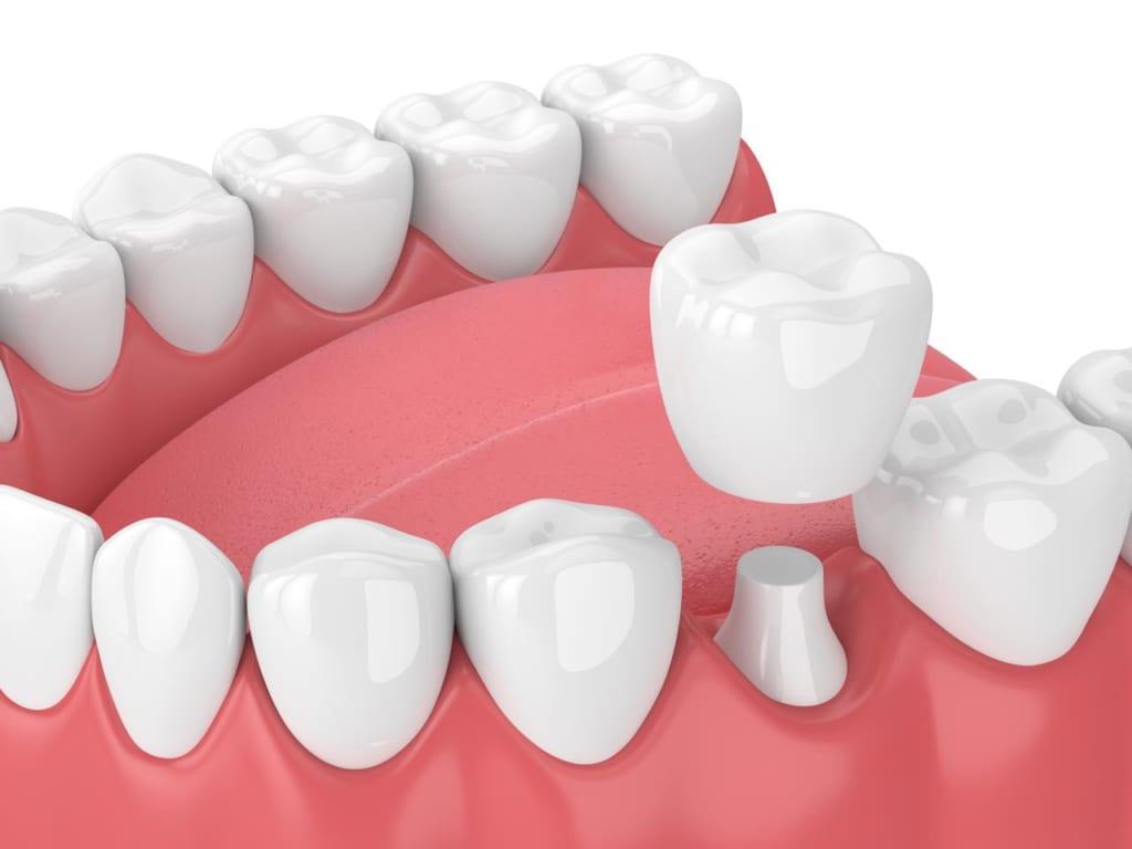 緩和 痛み 歯 の