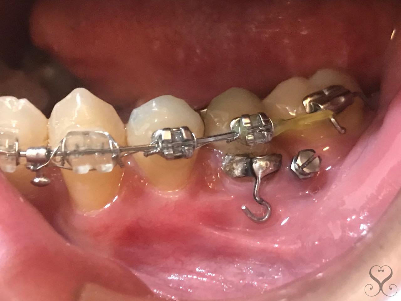 歯列矯正の期間がより短くなるインプラント矯正とは