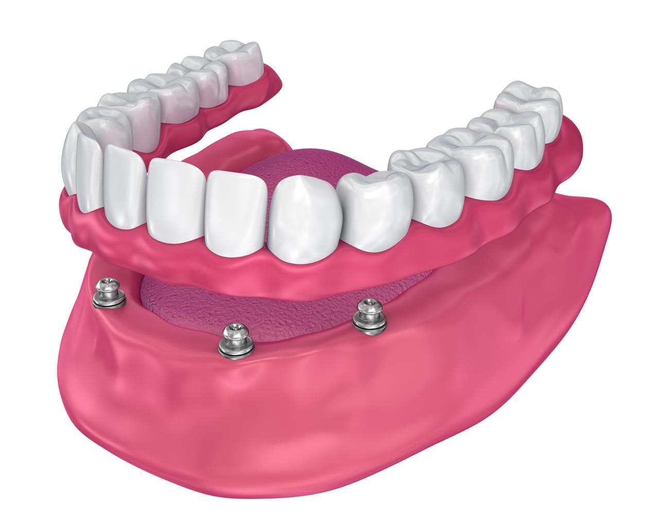 総入れ歯をインプラントで固定するオーバーデンチャーとは