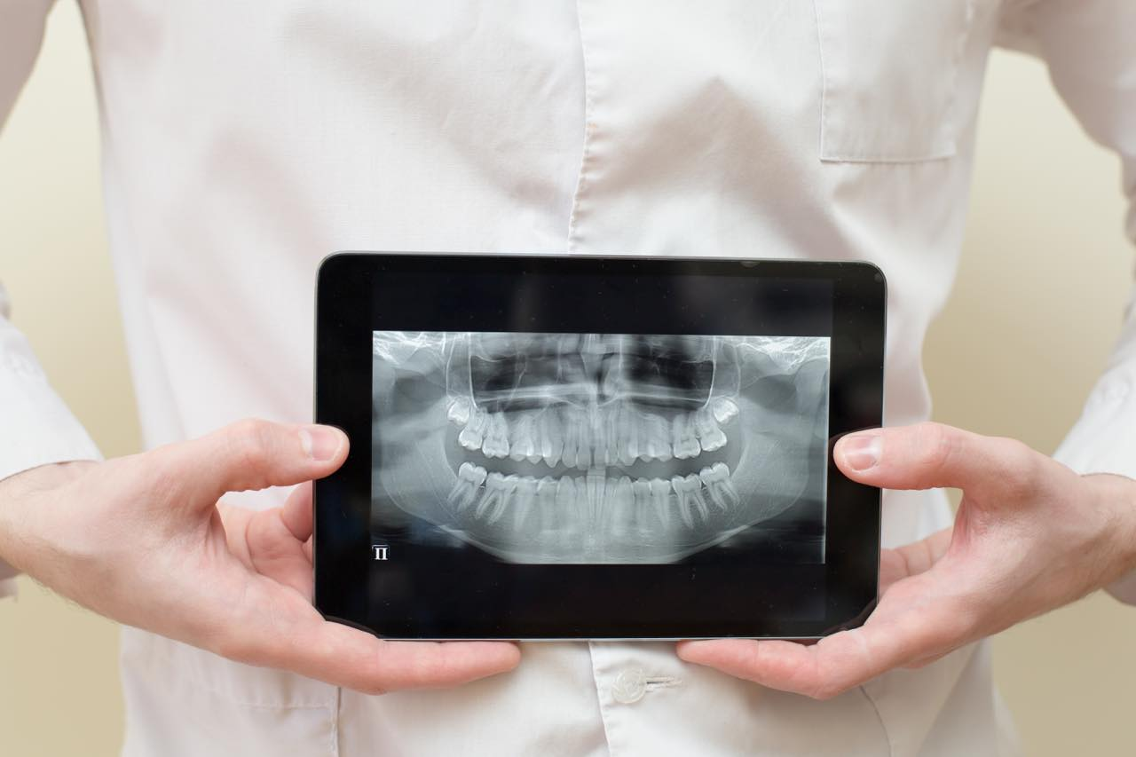 歯科レントゲンの種類と安全性