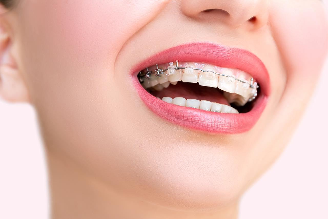 歯列矯正における抜歯の目的と非抜歯矯正との比較