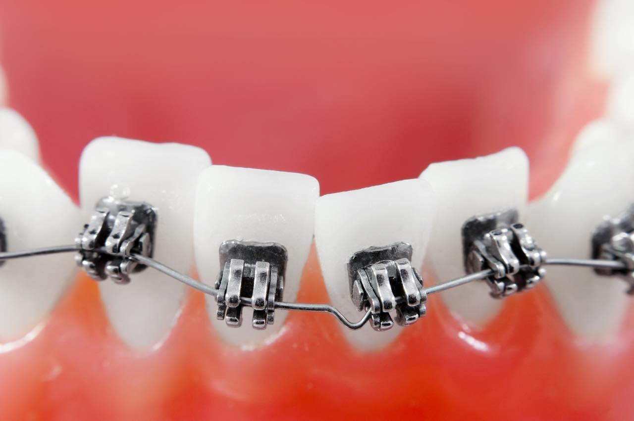 歯列矯正のレベリングとは?矯正の基本的な進め方とよく起こる問題