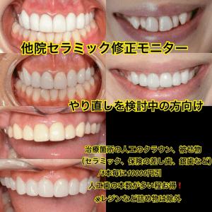 古い差し歯(被せ物)のチェンジモニター (セラミック)