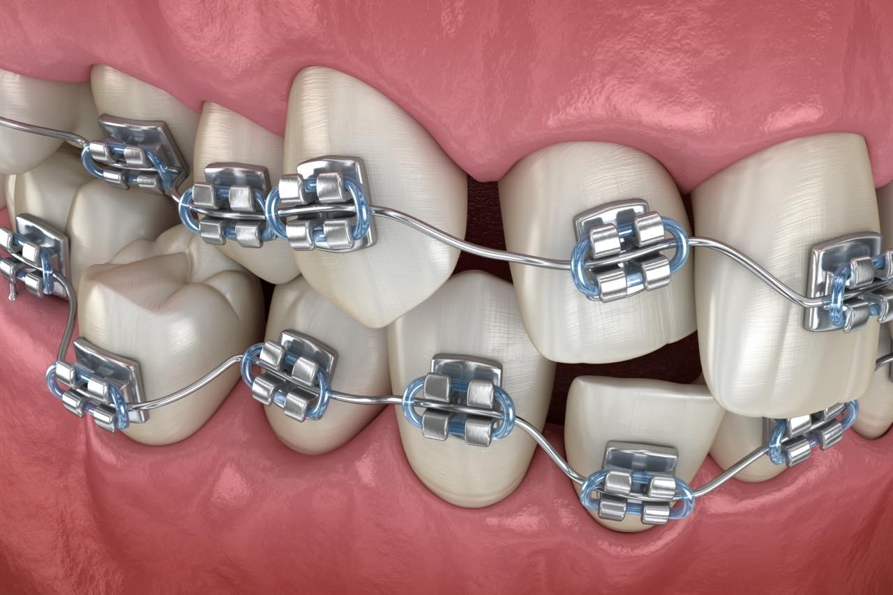 歯列矯正の失敗例と矯正開始前と完了後にできる対処法