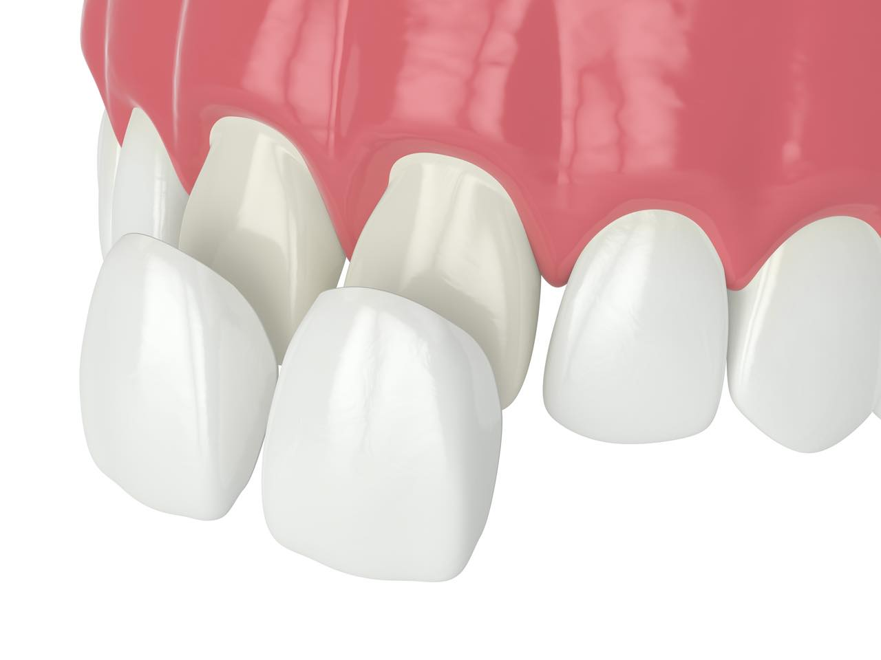ラミネートベニアで出っ歯は改善できますか?