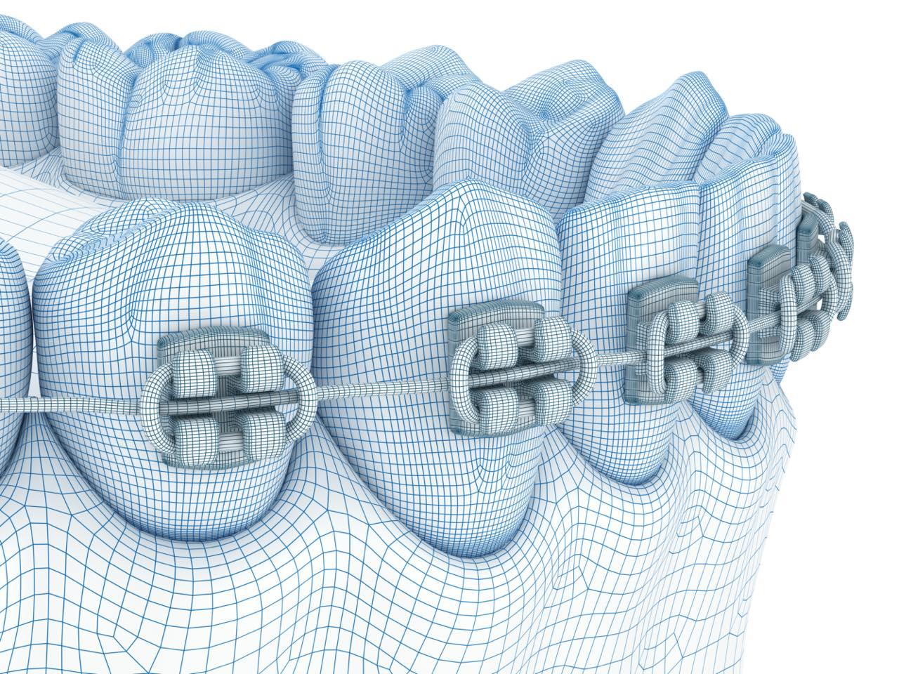歯列矯正は痛い?痛みが起きやすいケースと対処法