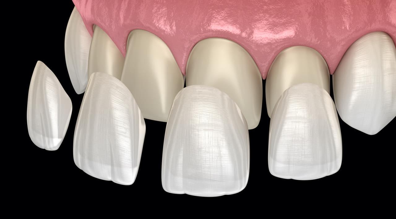 ラミネートベニアですきっ歯は改善できますか?