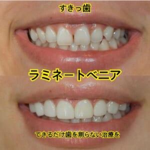 前歯のすきっ歯限定ラミネートベニアモニター募集