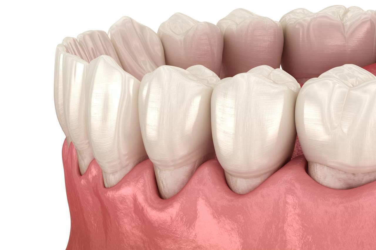 歯茎が下がる歯肉退縮の原因と治療法