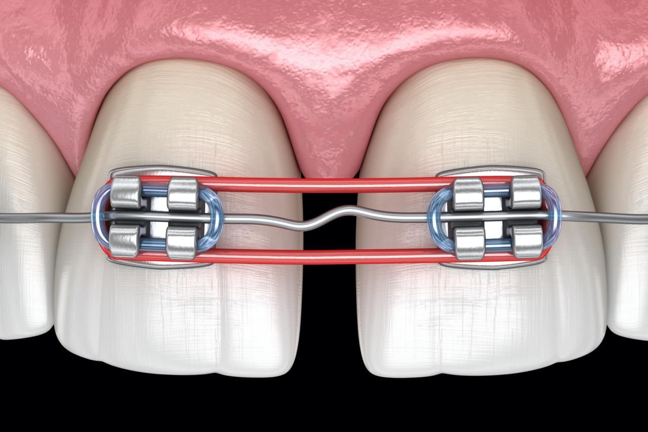 歯列矯正やマウスピース矯正で行うのゴムかけの効果と種類