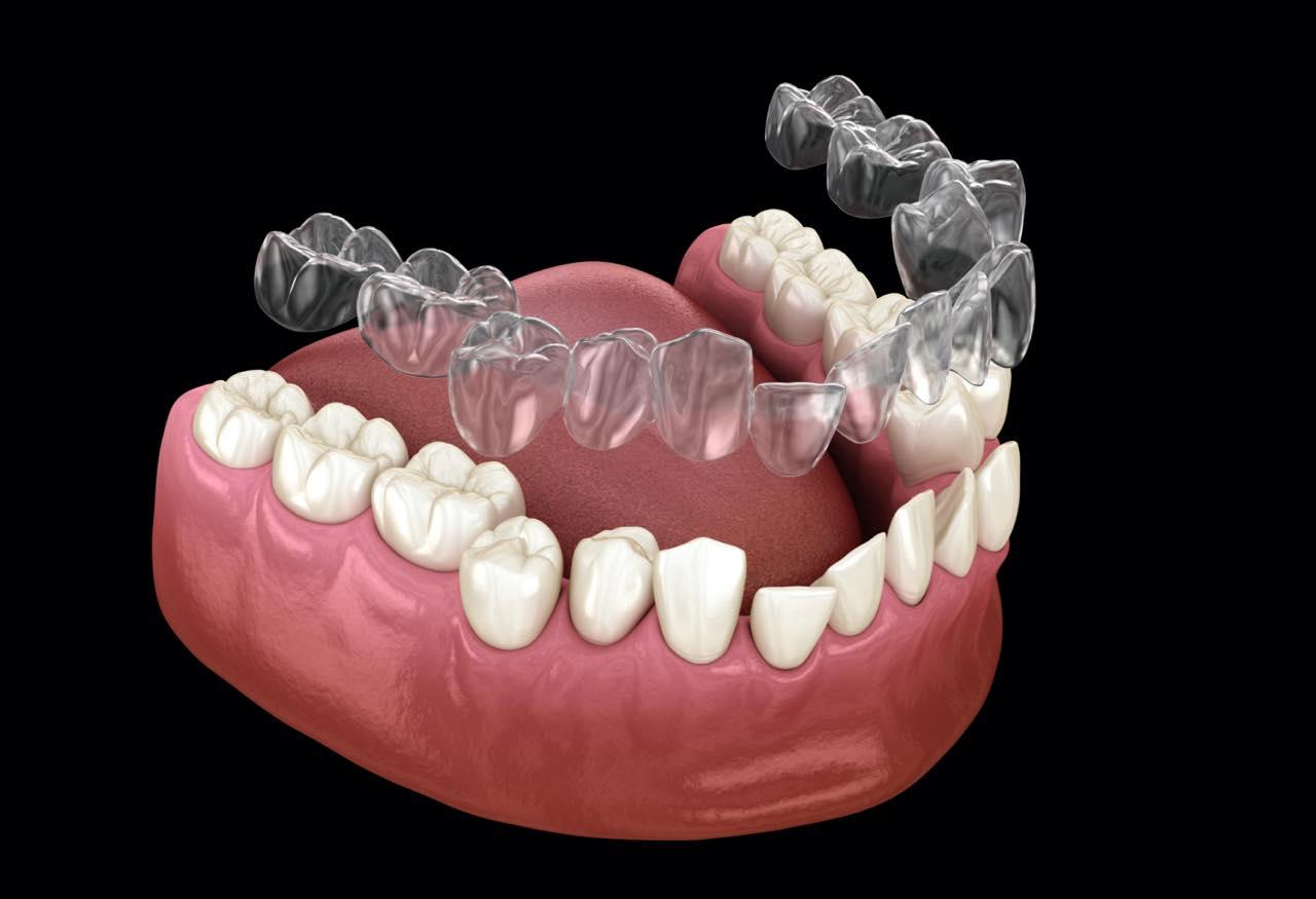 インビザライン矯正で抜歯が必要な症例とそのタイミング