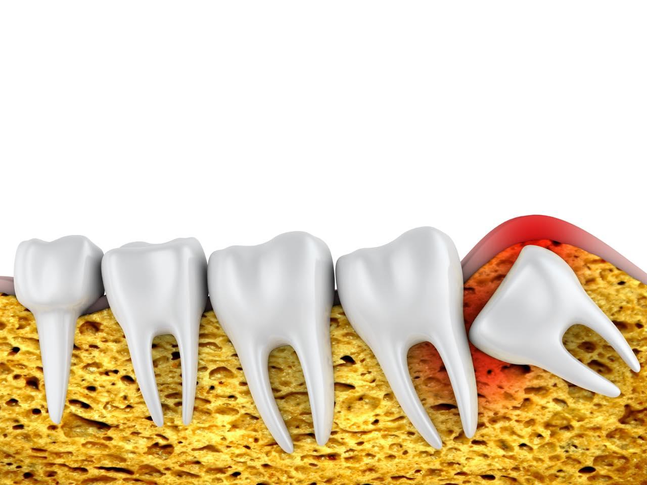 歯列矯正前・矯正中に親知らずの抜歯は必要?歯並びへの影響も解説
