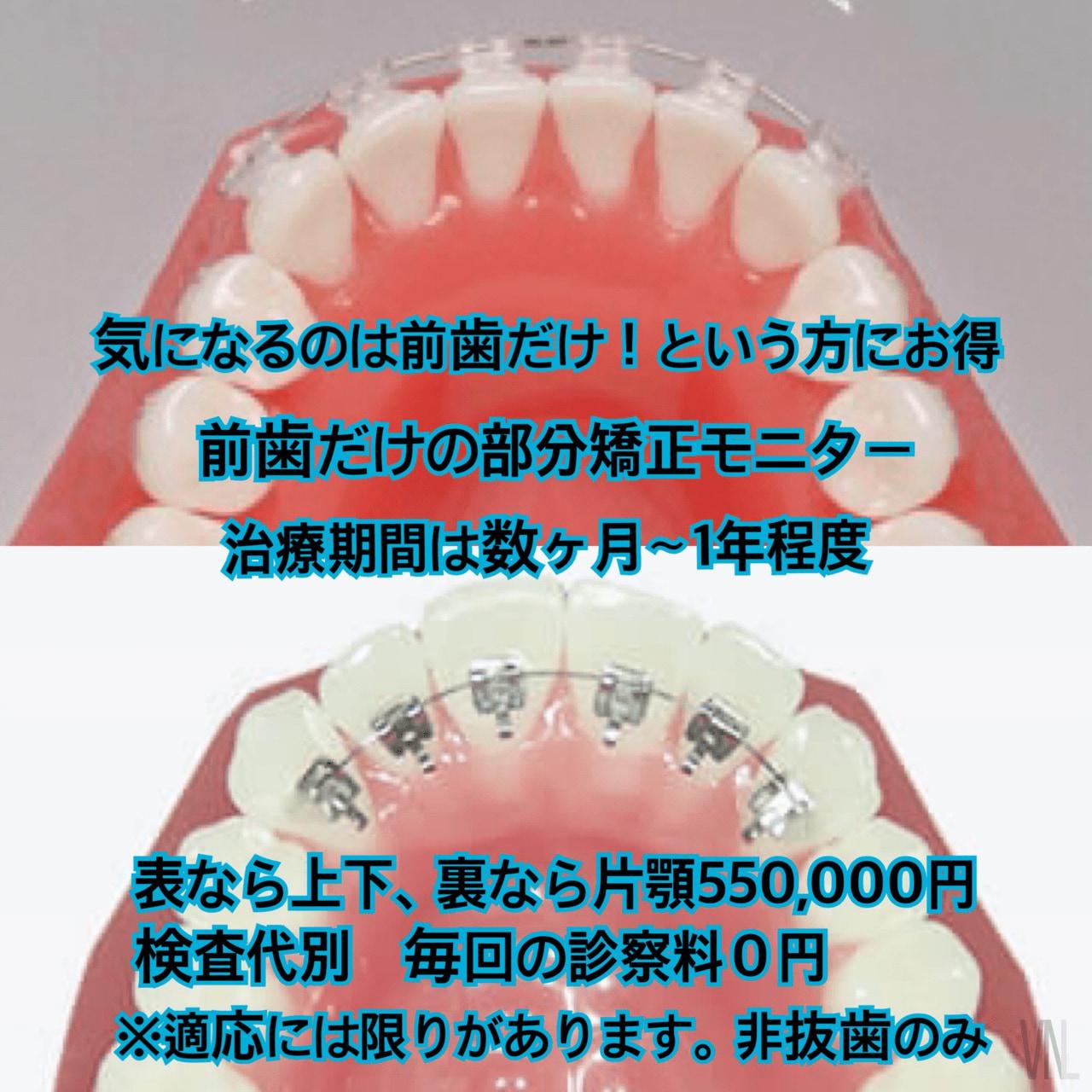 モニター 前歯の部分矯正