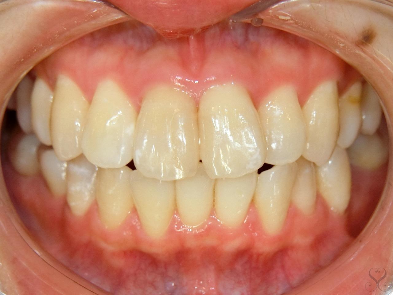 歯のねじれ「捻転歯」とは?その原因と矯正による改善