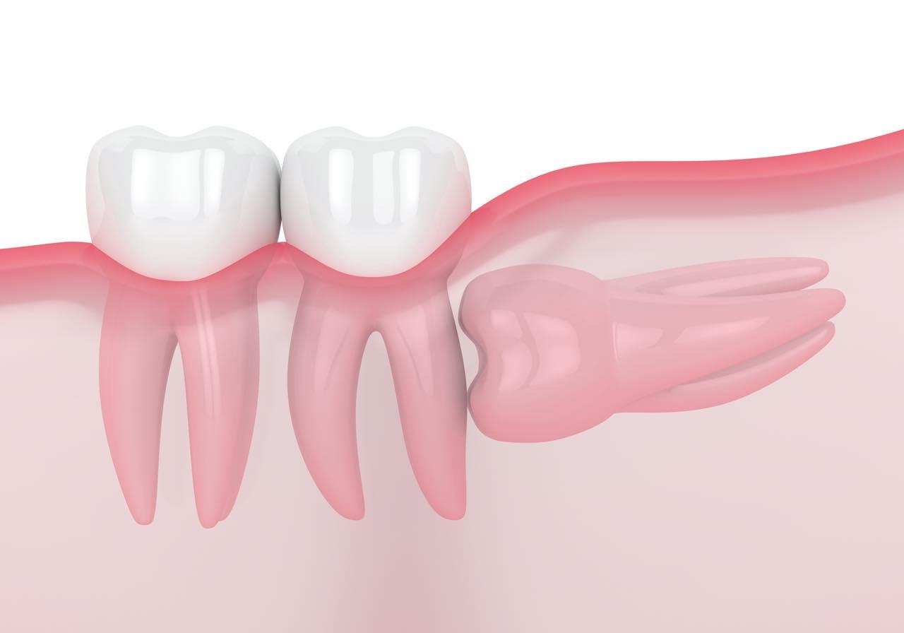 歯が埋まったまま生えてこない埋伏歯とは?原因・症状・治療法を解説