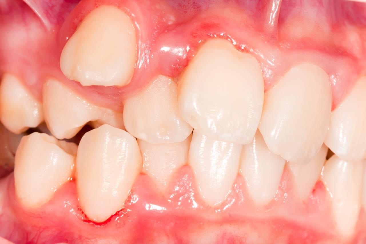 歯が正常な位置に生えてこない転位歯とは?原因と治療法を解説
