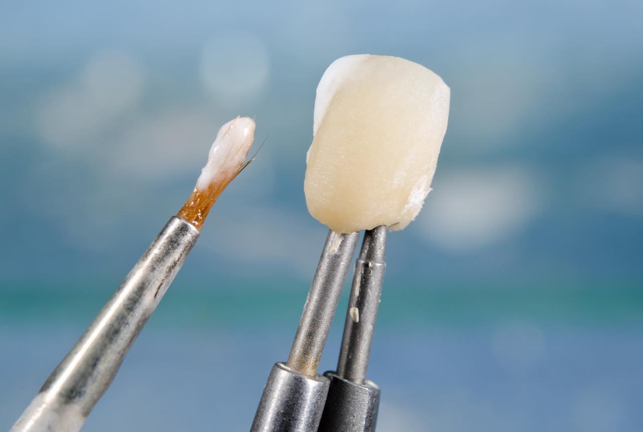 セラミック歯の作り方(製造工程)