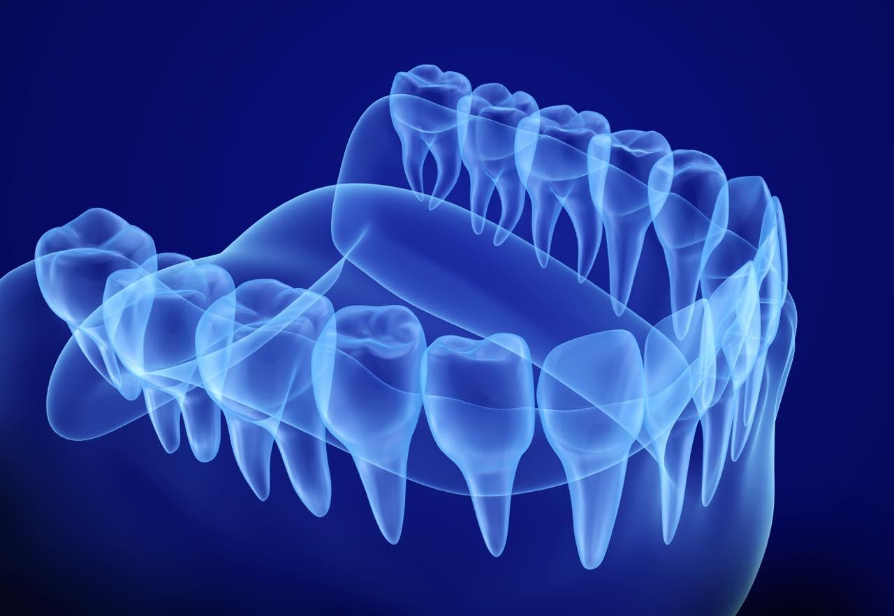 矯正治療における歯根吸収のリスクとは?その症状と治療法も解説
